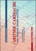 Aritmie cardiache. Una diagnosi basata sull'ECG